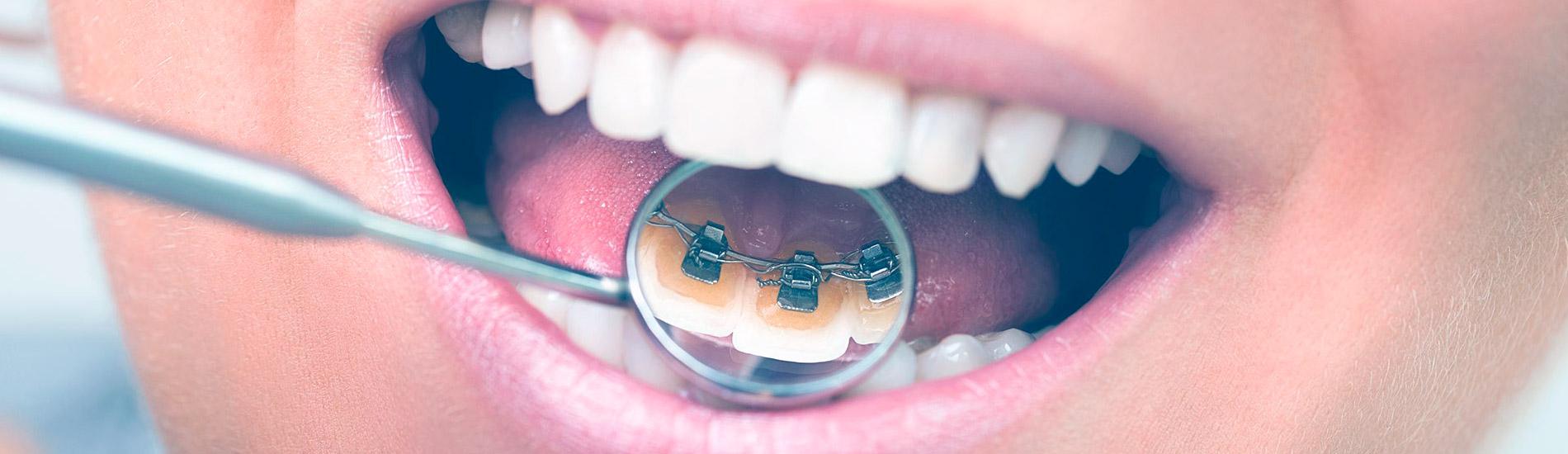 ortodoncia lingual granada